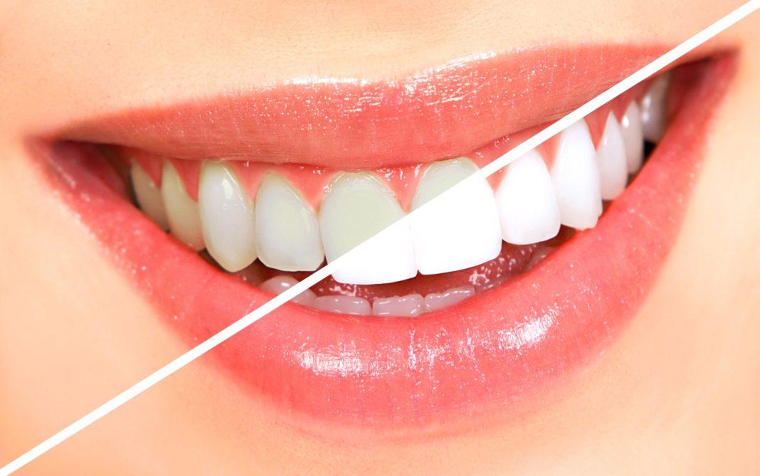 cum sa iti albesti dinti cu benzi pentru albirea dintilor acasa